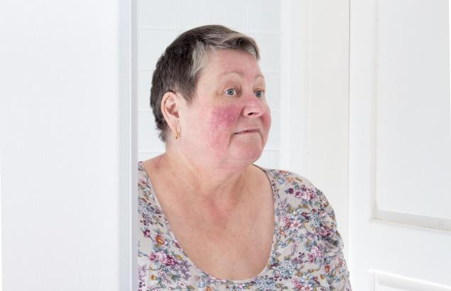 Woman with rosacea looking into mirror