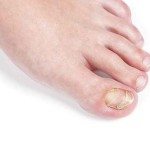 Example of nail disorders