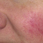 Example of rosacea