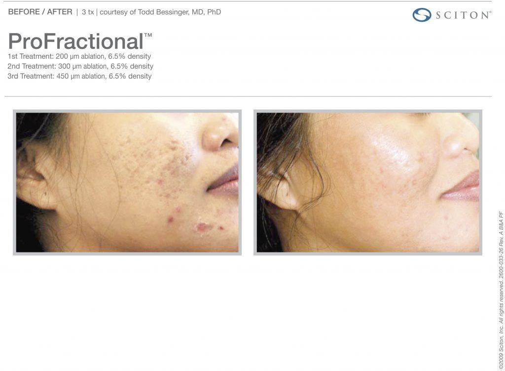 Female Patient Before and After ProFractional Therapy