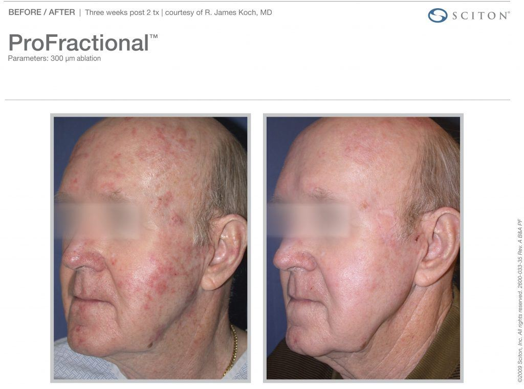 Male Patient Before and After ProFractional Therapy