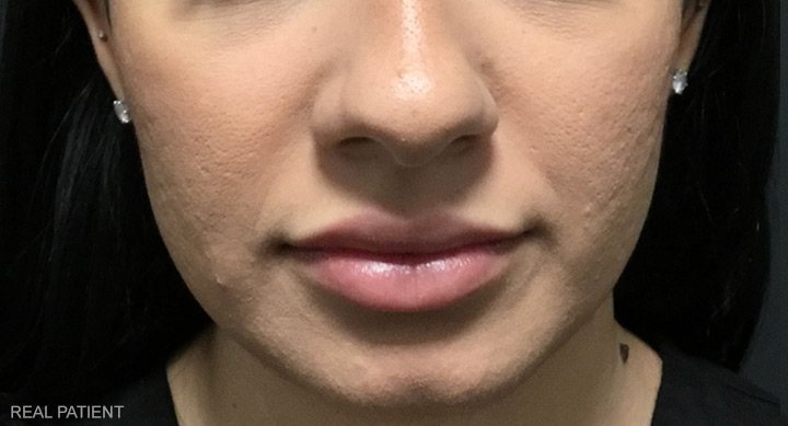 After Lip Filler