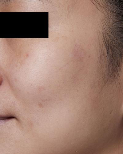 After PicoWay Laser Treatment