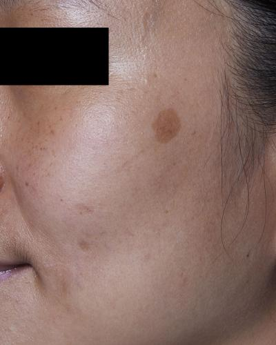 Before PicoWay Laser Treatment