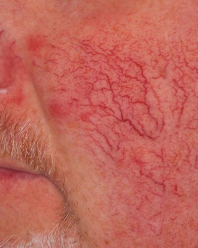 VBeam Prima Redness Treatment