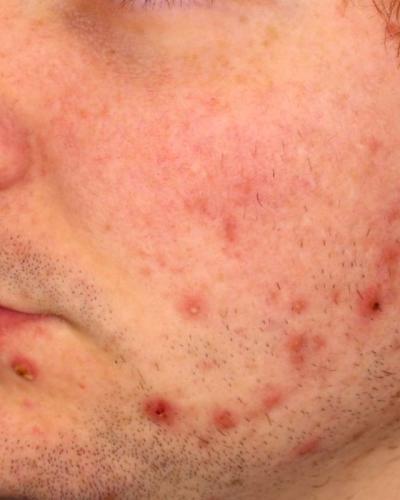 VBeam Prima Acne Treatment