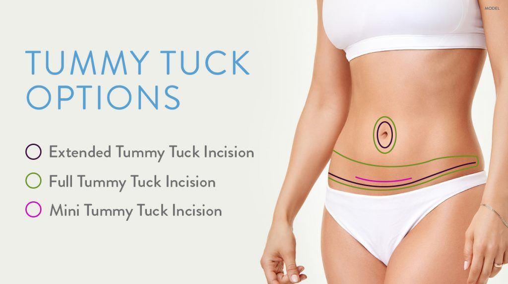 Diagram of the different areas associated with an extended tummy tuck, full tummy tuck, and mini tummy tuck