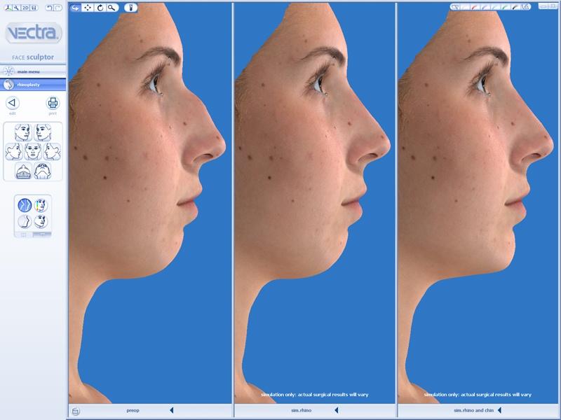 Vectra face 3D